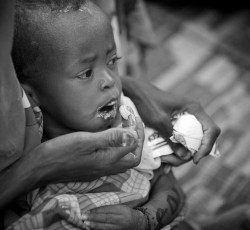 Malnourished child receives treatment in Ethiopian camp, July 2011. Credit: OCHA/Jiro Ose