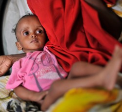 Somalia: Zulekha Mahad Ali, 25, with her son Zakariah Guled, 9 months, at the Bosasso general hospital. She brought her son due to severe malnutrition. Zulekha comes from South Central Somalia and she fled because of the war. Credit: R. Gangale/UNHCR