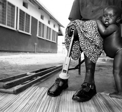 Uganda: Child's mother who was fitted with prosthesis after her leg was blown off by a landmine. Credit: IRIN/ Sven Torfinn